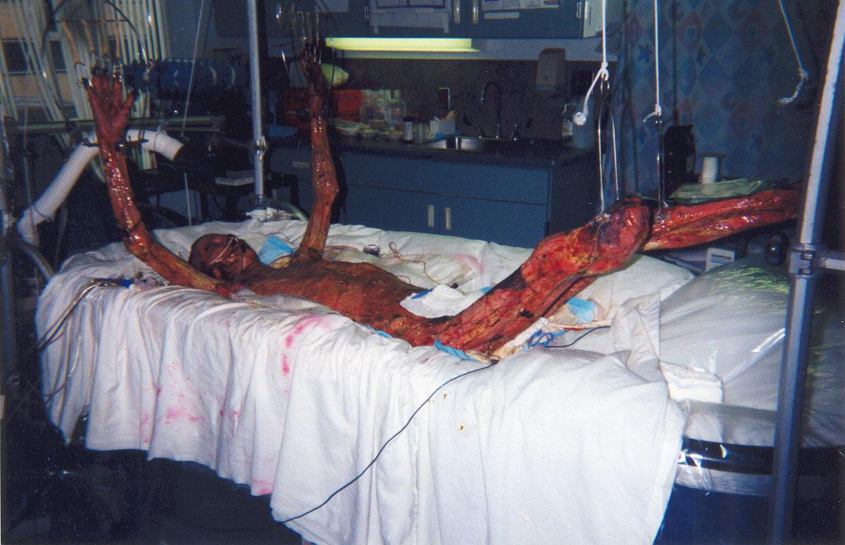 東海村JCO臨界事故の被害者の写真